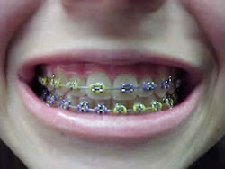 9.Behel(kawat gigi)
