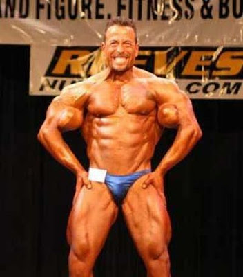 Victims of Synthol - False Kings of Bodybuilding ~ LikePage