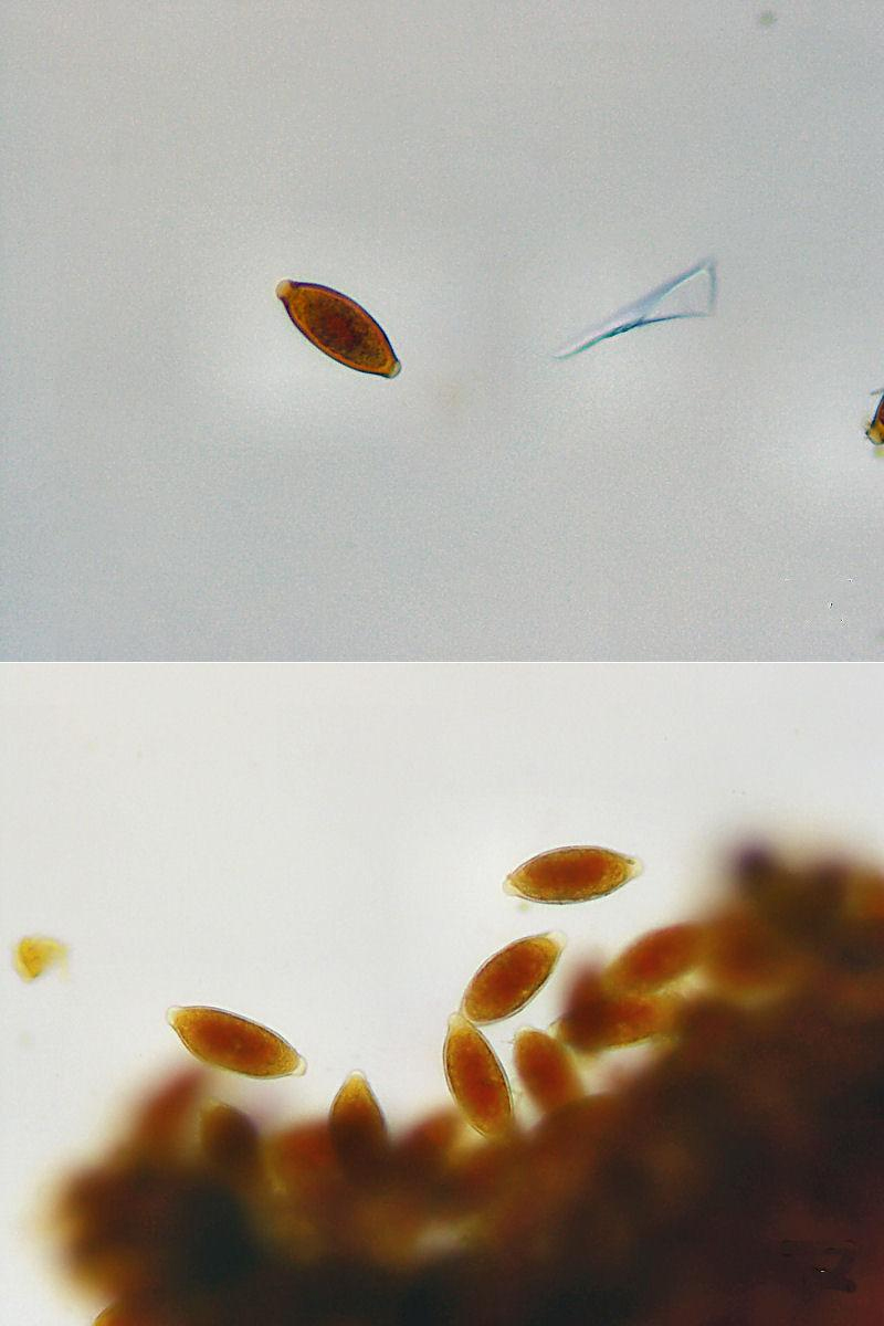 Parasite Eggs in Human Stool Worms