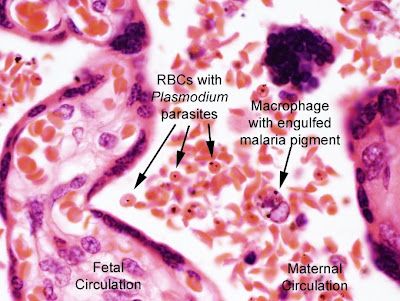 malaria falciparum malaria essay