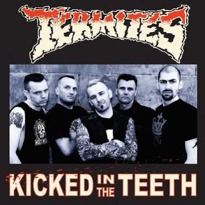 The Termites - Kicked In The Teeth [2008]