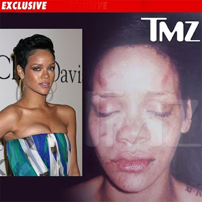 rihanna picture after beating