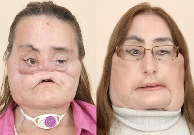 Connie Culp First Face Transplant