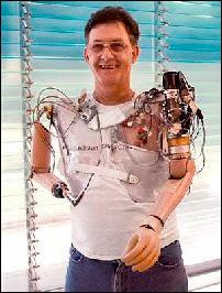 Jesse Sullivan portant la première génération de prothèse bionique fabriquée notamment par l'APL.