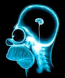 Radiographie du cerveau d'Omer Simpson...