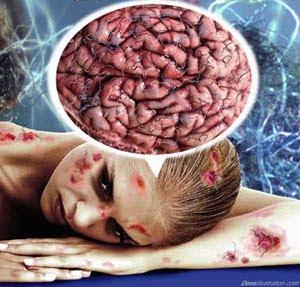 morgellons doença pele transgenicos rastro quimico
