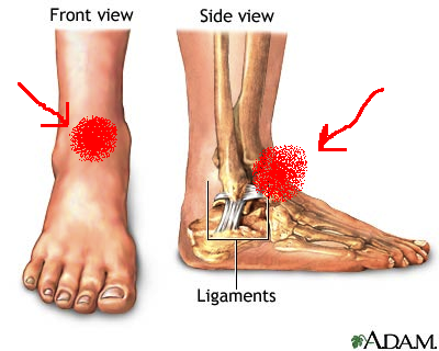 how to treat a swollen ankle after a fall