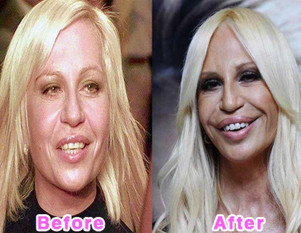 Worst celebrity plastic surgery disasters | Plastic ...