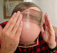 man pressing down his comb-over