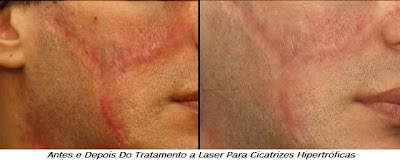 Tratamento a Laser para Cicatrizes