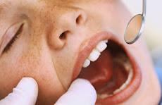 OPERATIVO de Chequeo Odontológico TOTALMENTE GRATIS en la Universidad Nueva Esparta