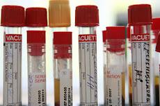 Mientras en Venezuela aumentan a 52 los casos de contagio de gripe AH1N1
