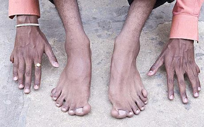 Man has 12 fingers and 14 toes