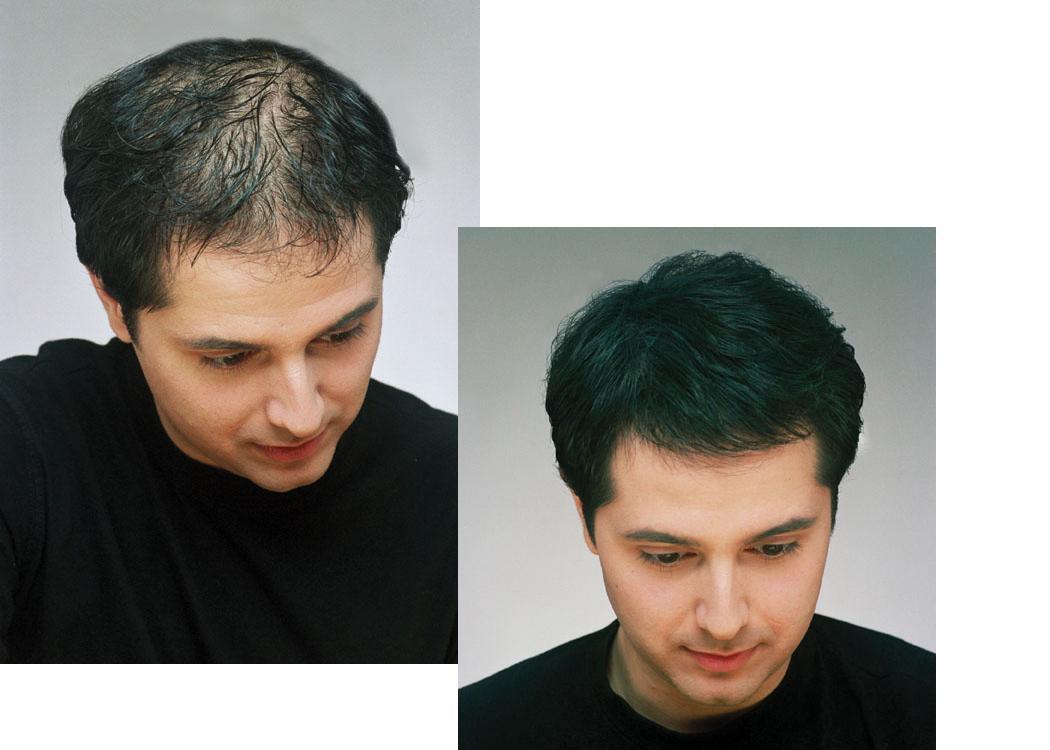 Que medios para los cabellos para la densidad y el crecimiento de los cabello