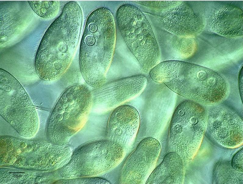 ENFERMEDADES DE PLANTAS TRANMITIDAS POR VIRUS  Kingdom Protista