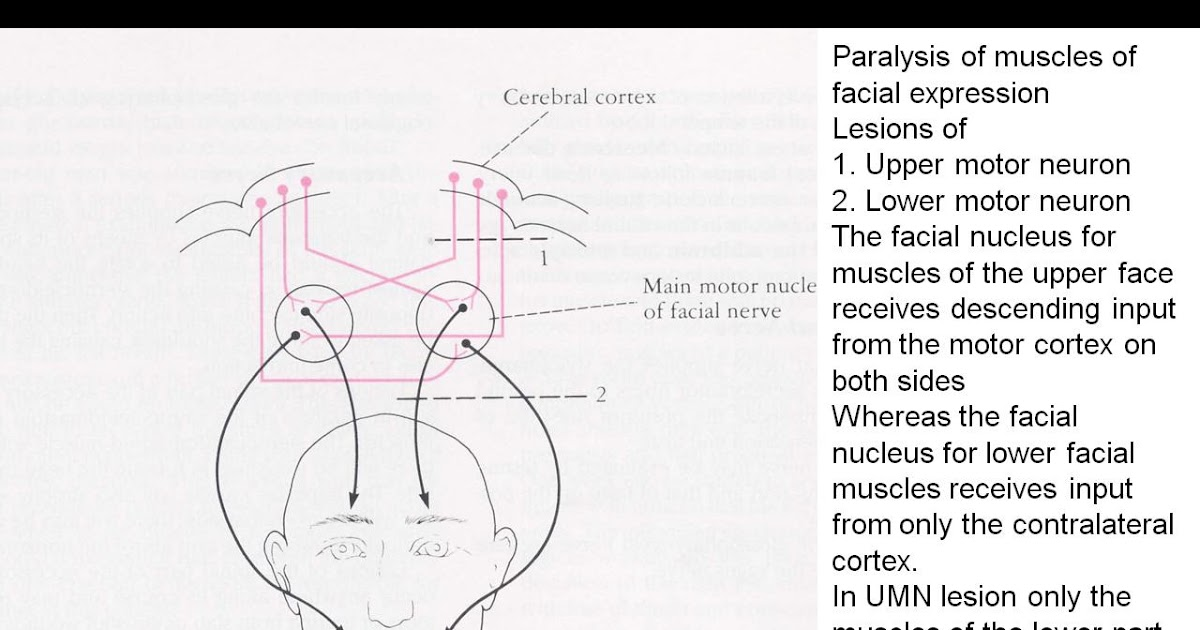 Ainaa ismail lower motor neuron lesion at face for Lower motor neuron diseases
