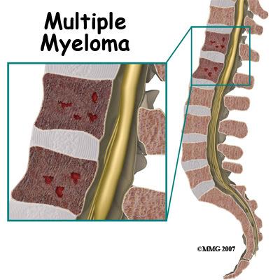 Multiple Myeloma Life Expectancy Stage 3 Multiple Myeloma Cancer