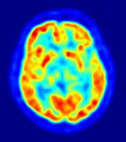 cervello in attività durante una PET