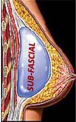 implante subfascial