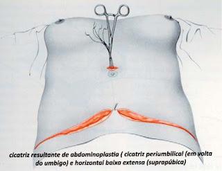cicatriz de plastica de abdome