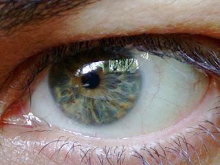 Göz tansiyonu nedir. Belirtileri nelerdir. Neden olur ?