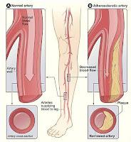 Peripheral Artery Disease Legs