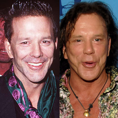 mickey rourke face
