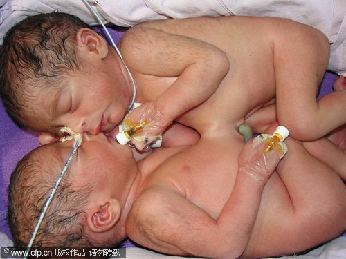 Siamese Twins Separated Successfully