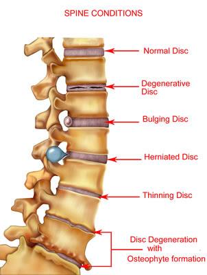 free printable spine diagram duŠan Čech, Human Body