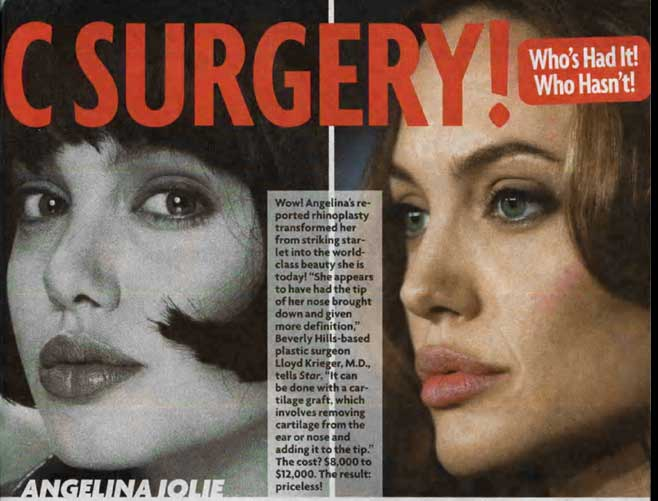 angelina jolie plastic surgery photos. Angelina Jolie: In the name of