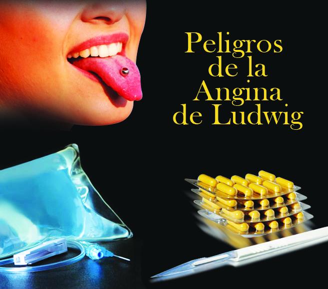 Diseminación de Infecciones Odontogénicas: Angina de Ludwig