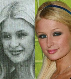 paris_hilton_plastic-surgery.jpg