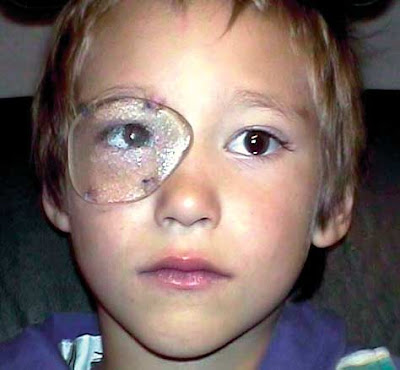 Sutured Protective Occluder for Severe Amblyopia: What were they thinking?