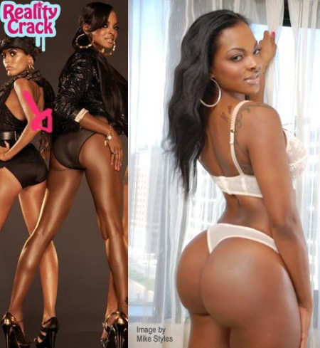 nicki minaj bum implants before and. uttock implants before and
