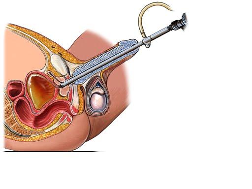Enfermedades cardiovasculares camcer a la prostata