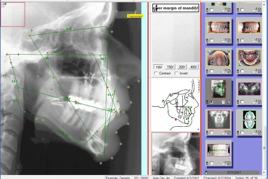 ceph analysis About us cephx is a unique web based service which provides a complete solution for ceph tracing, storing, viewing and sharing - cephalometric analysis, patient photos, treatment plans and worksheets.