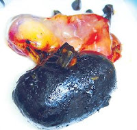 gallstones Gallstones   The Silent Stones