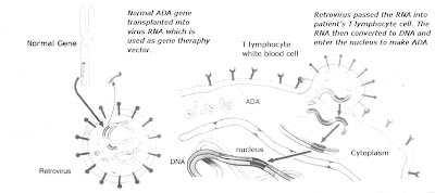 Illustration explaining how gene therapy is done to treat ADA Deficiency