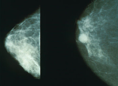 Normal Breast vs Cancerous Breast Mammography Image.