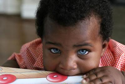 Impressionante Caso Do Beb   Negro De Olhos Azuis