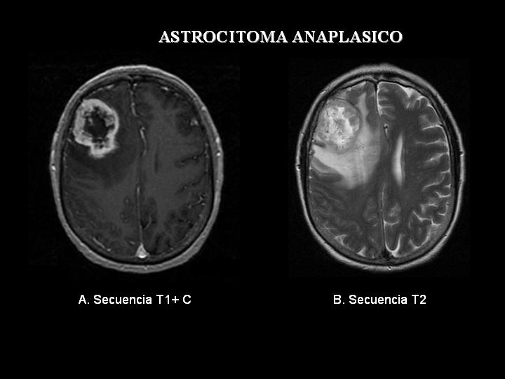The Facts - Dealing with Malignant Astrocytoma