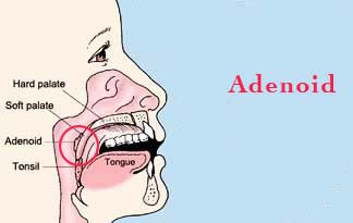 How to Shrink Adenoids picture