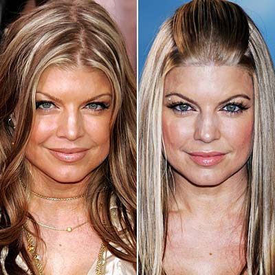 Fergie Botox | Botox Before