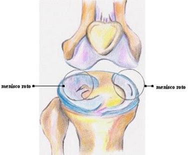 Segno del ginocchio del menisco lacerato. LE LESIONI DEL MENISCO DEL GINOCCHIO
