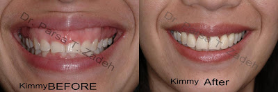 gummy Smile Surgery before and after photo