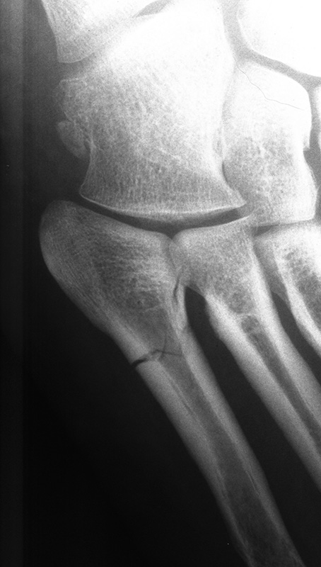lateral foot pain 5th metatarsal