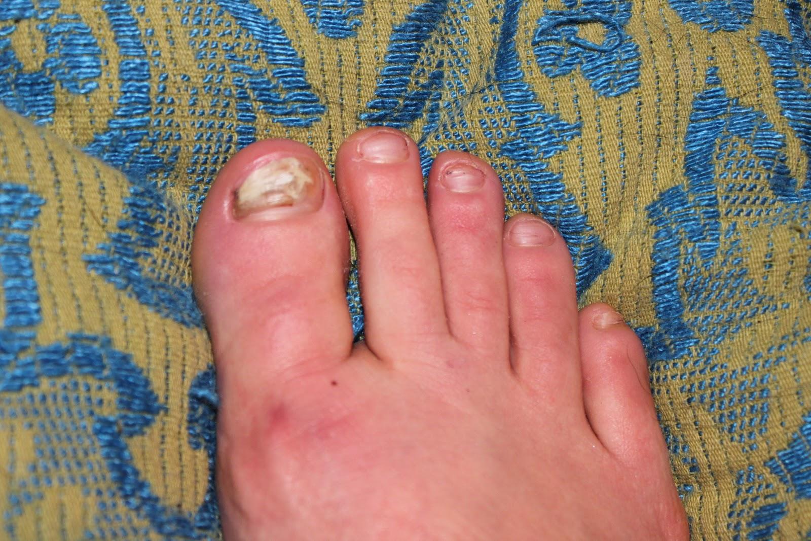 Wild Defined: Yes, I\'m losing toenails