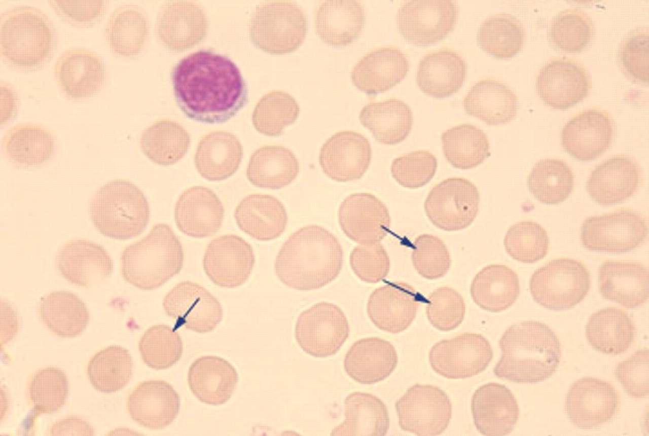 Easy Pediatrics: Clinical Manifestations of Hereditary spherocytosis