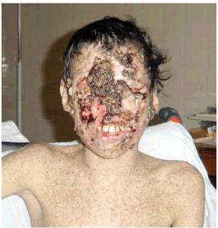 Las enfermedades más raras... Porfiria