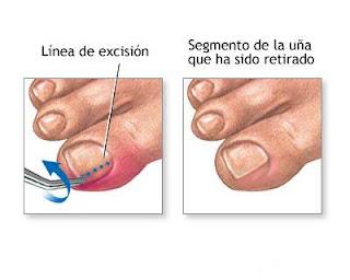 La medicina curar el hongo de las uñas en los pies